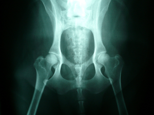 Do you have a test to screen for hip dysplasia?